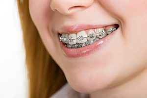 Young woman smiling with brackets on teeth - Khouri Orthodontics