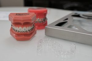 Clear Braces - Khouri Orthodontics