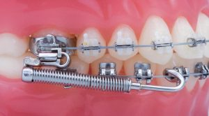 Forsus - Khouri Orthodontics