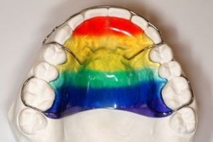 Colorful Removable Appliance - Khouri Orthodontics