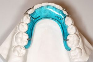 Color Removable Appliance - Khouri Orthodontics
