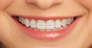 Adult smiling with braces