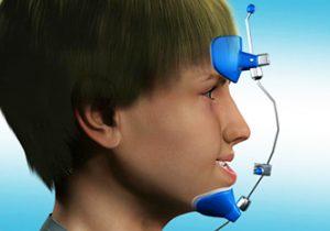 Facemask - Khouri Orthodontics