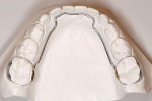 Space Maintainer - Khouri Orthodontics